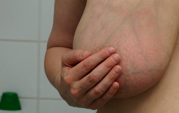 Ett bröst med mjölkstockning. En hand döljer bröstvårta och vårtgård.