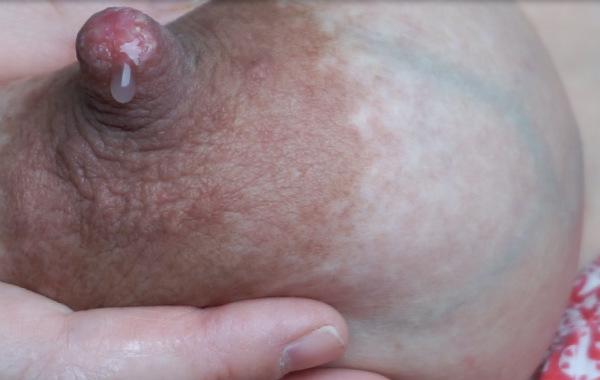 Amningsvänlig tilläggsmatning. En droppe råmjölk hänger från en bröstvårta i närbild.